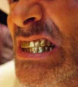 boca-de-ouro-1